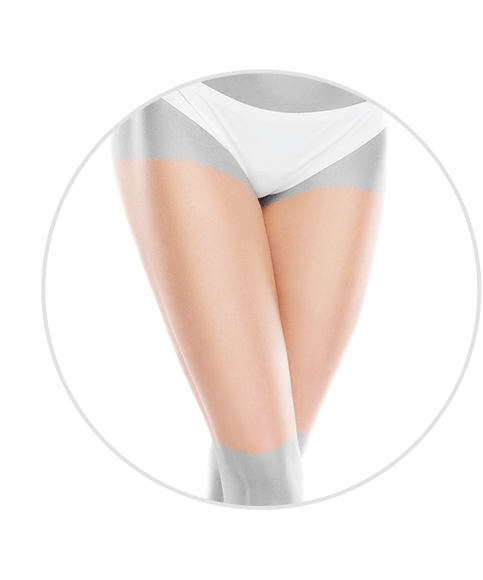 hair removal thights treatment