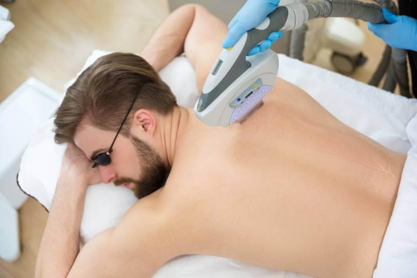 leżący mężczyzna podczas zabiegu depilacji laserowej pleców