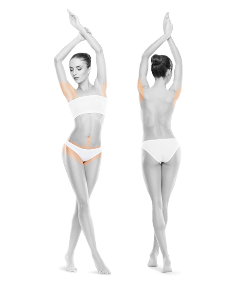 photo of woman front and back armipts and bikini one year treatment